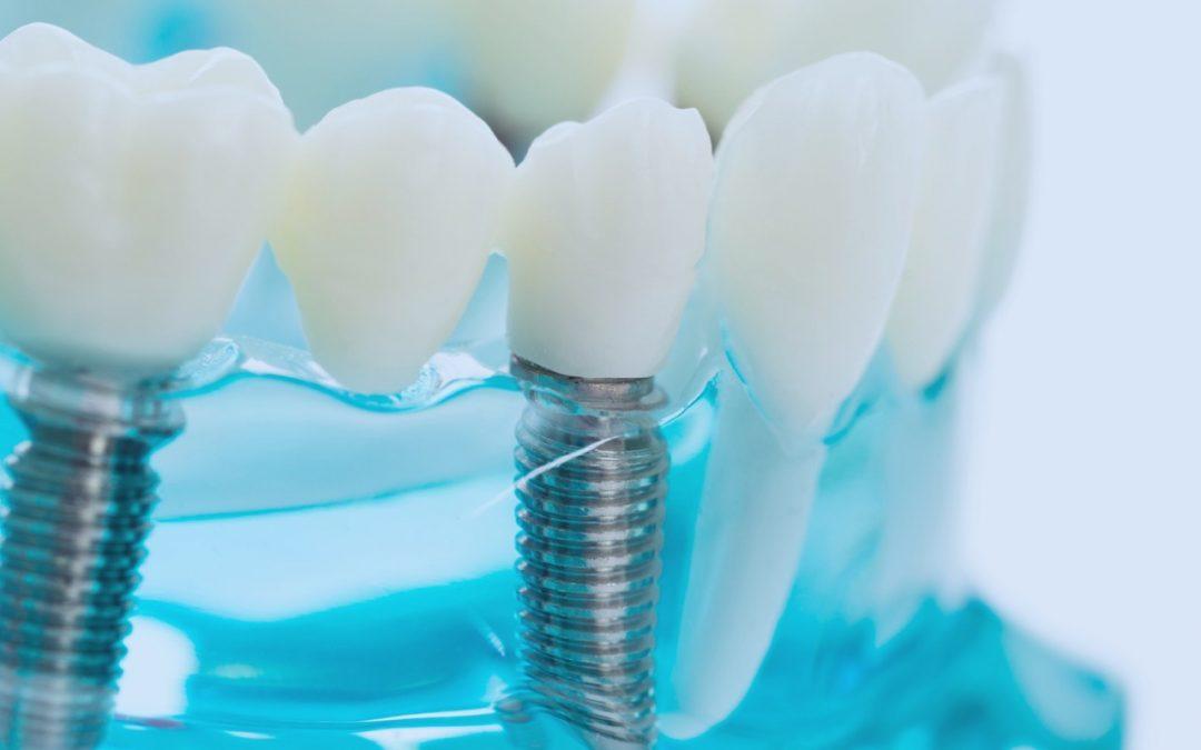 Transport Network Optimization Helps a Leading Dental Implants Manufacturer Reduce Overheads